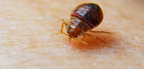 Photos of bedbug bites