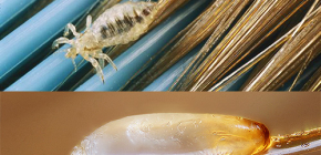 How and what can kill lice and nits on the head
