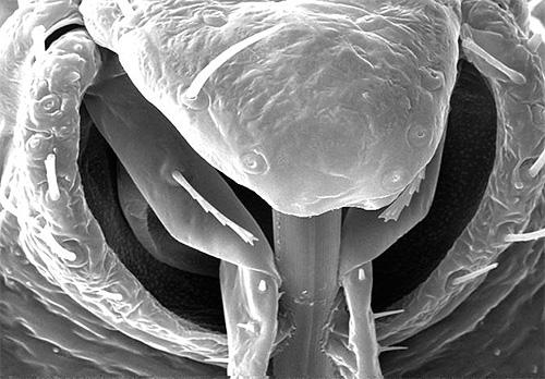 علة بروبسكيس تحت المجهر