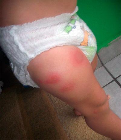 Allergy to bedbug bites