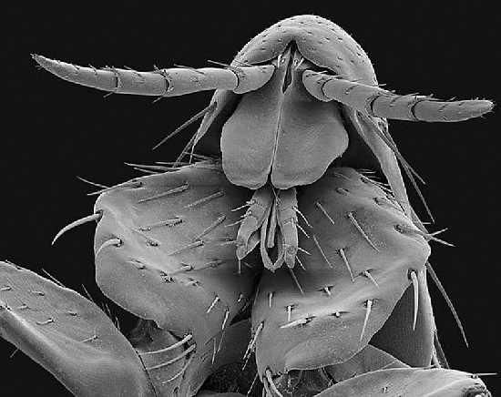 برغوث الإنسان تحت المجهر