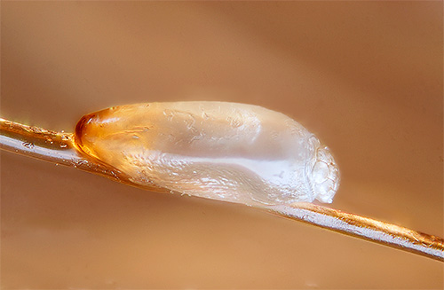 Photo of nits on the hair under the microscope