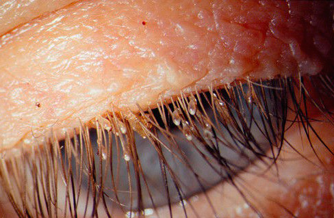And this is what nits look like on the eyelashes of a person.