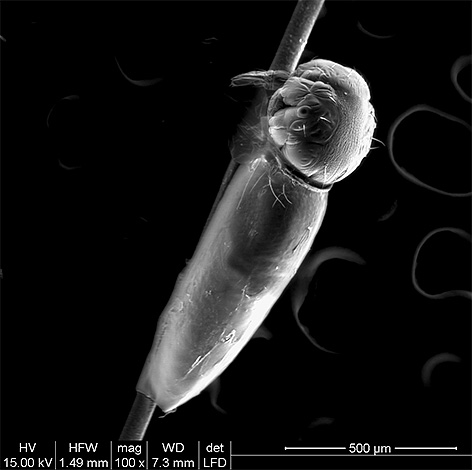 In the photo the louse larva hatches from the nits.