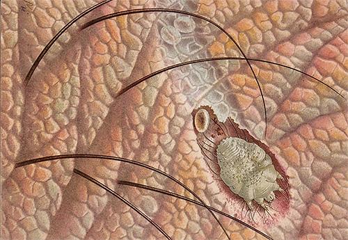Ο αιτιολογικός παράγοντας της ψώρα - ψώρα ακάρεα - δεν μπορεί να δει χωρίς ένα μικροσκόπιο