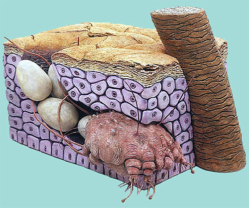 Θηλυκό τσίμπημα και τα αυγά του στο δέρμα