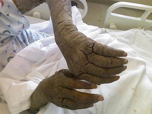 Φωτογραφία των χεριών ενός άνδρα με νορβηγική ψώρα