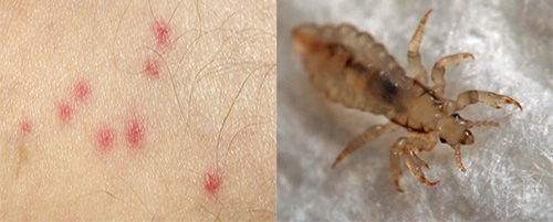 Bites of lice distinctly differ from the bites of other insects. How to recognize them - find out further.