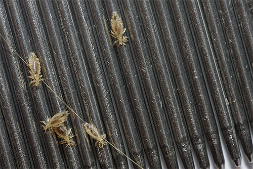The photo shows lice combed out with a comb.