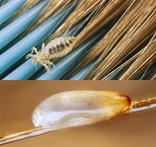 Consider several effective ways that will kill the lice and nits on the head, and to do it safely for health.
