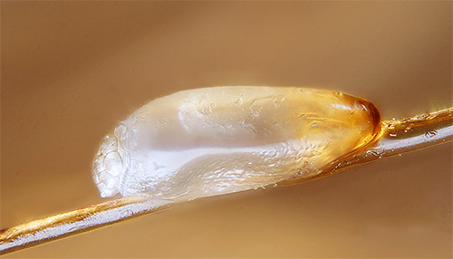Lice nits are protected by a special shell, so even many modern means are not able to kill them.