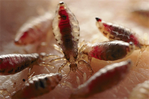 Especially strong itching lice cause with a large number of them on the head