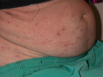 The photo shows numerous bites of body lice (underwear)