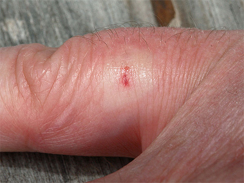 This is what a wasp bite looks like a few minutes after stinging.