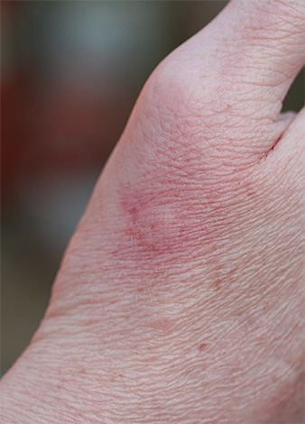 A normal reaction to a wasp sting is a slight local redness and slight swelling.