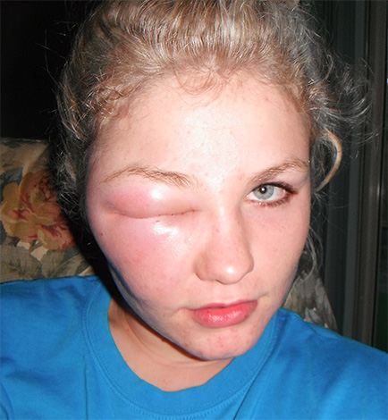 Sometimes insect venom provokes an allergic reaction with a pronounced swelling of soft tissues.