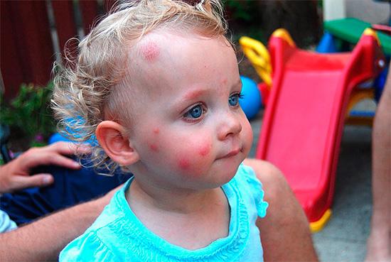 آثار لدغات الحشرات على وجه طفل