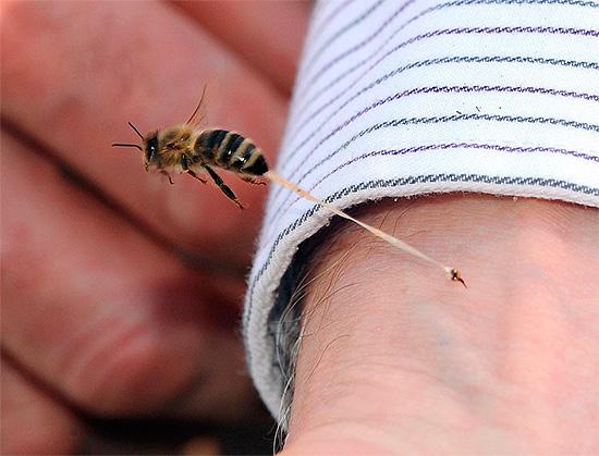 نحلة السم هو حساسية قوية