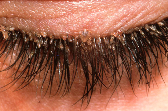 Another example of lice infested eyelashes.