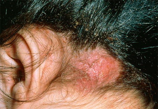 With a large number of lice on the scalp can appear scabs.