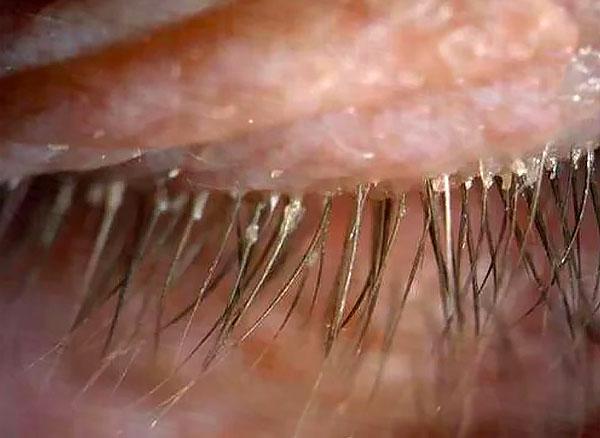 من أعراض مميزة داء الدويدي هو إفرازات على الرموش.