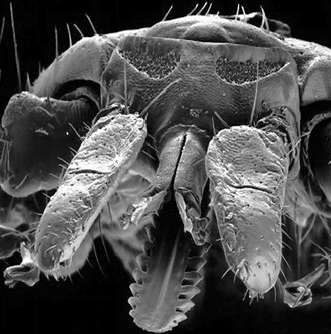 It looks like the oral apparatus of the Ixodes tick under the electron microscope.
