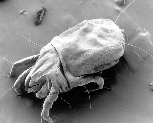 Dermatophagoides pteronyssinus تحت المجهر الإلكتروني