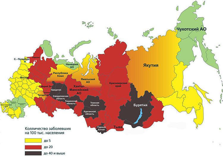 يشير اللون البني والأحمر في الصورة إلى مناطق الاتحاد الروسي ، وهي أخطر أنواع التهاب الدماغ الذي ينتقل عن طريق القراد.