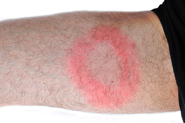 Another example of migrating ring erythema.
