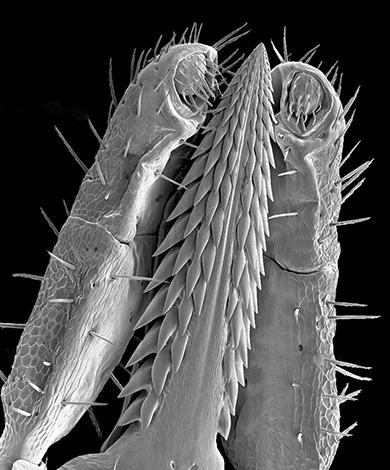 The appearance of the tick proboscis under a microscope.