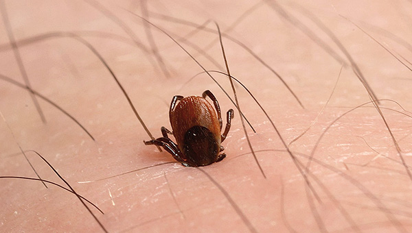 Infection can occur even if the tick has just stuck, after which it was immediately removed.